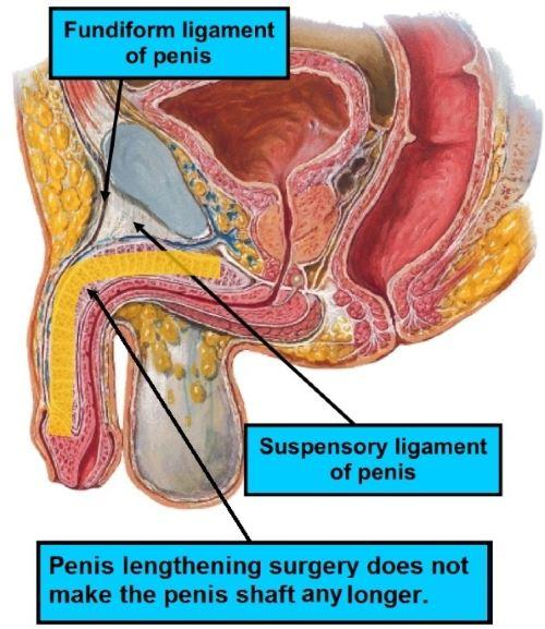 Penis Lengthening Surgery Diagram