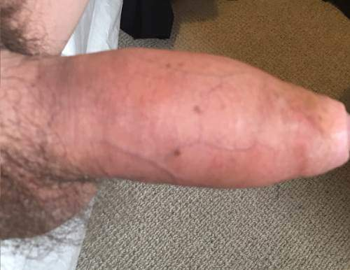 After Androfill Penis Enlargement 3