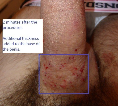Androfill Penis Enlargement Patient After 16ml
